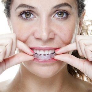 knarsende tanden